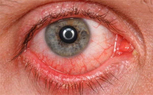 کرونا چشم را آلوده می نماید؟